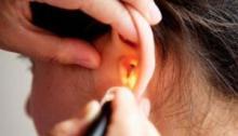 telinga bernanah menahun